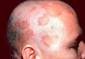 kafada seborik dermatit