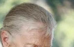 menopoz ve saç