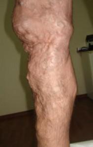 bacaklardaki varisler