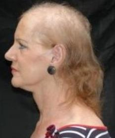 menopozda saç dökülmesi Menopozda saç sorunları