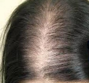 anemiye bağlı saç dökülmesi