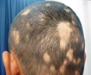 saç kıran neden olur