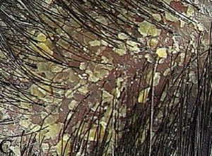sebore saçı dökermi 300x221 Seboreik dermatit saçı dökermi