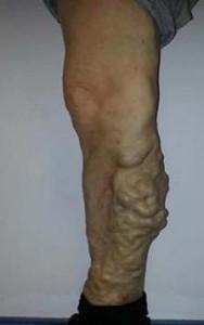 varis ağrısı 188x300 Bacak ağrıları