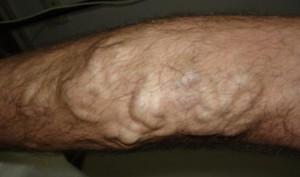 varis tedavisi ne kadar sürer 300x177 Varis tedavisi ne kadar sürer