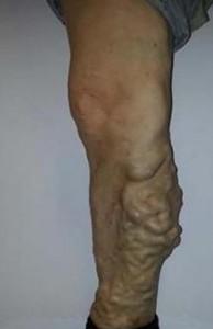 varis ağrısı nasıl geçer 194x300 Varis ağrısı