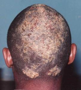 ilerlemiş yağlı egzama 271x300 Yağlı egzama ilacı DermoTTO