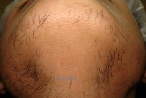 sakal ekimi öncesi 300x202 Deneme amaçlı sakal ekimi