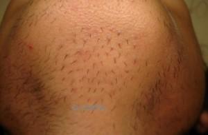 sakal ekimi sonrası 300x196 Deneme amaçlı sakal ekimi