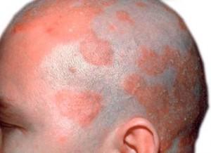 seboreik dermatit için şampuanlar