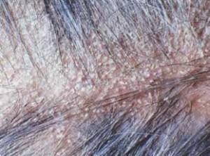 Yoğun kepekte en etkili şampuanlar 300x222 aşırı kepeklenme