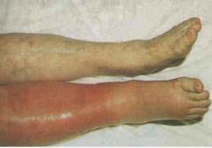bacakta ödem görüntüleri 300x210 Toplar damar tıkanması