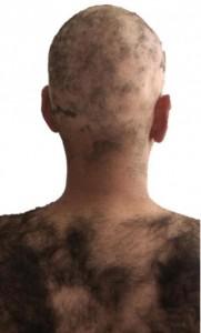 alopecia areata nerelerde olur