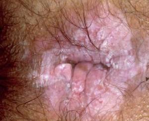 mayasıl bitkisel tedavisi 300x244 Mayasıl nasıl iyileşir