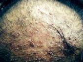 kafada kabuk nasıl geçirilir kafadaki kabuklu yaralar