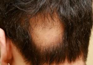saç kıran 300x208 saçkıran nerelerde olur