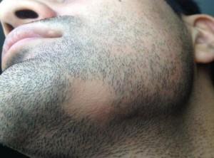 sakalkıran 300x222 saçkıran nerelerde olur
