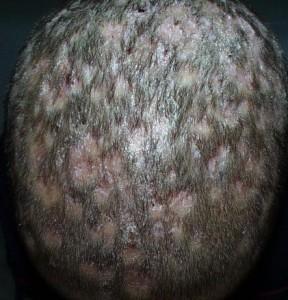 kafada mantar saç dökülmesi