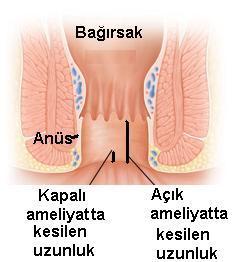 kapalı makat çatlağı ameliyatı Kapalı anal fissür ameliyatı