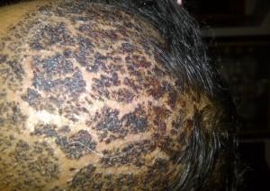 saç ekimi kabuklar