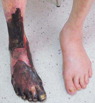 bacak damar tıkanıklığı Bacak damarı tıkanıklığı