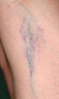 bacakta-kilcal-damar-catlamasi