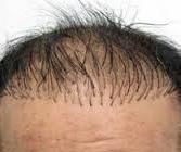 dik çıkan saçlar nasıl yok edilir