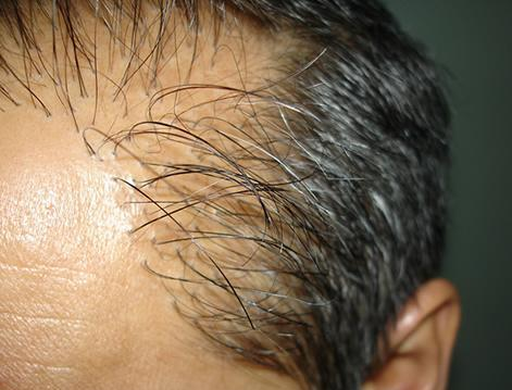en iyi saç ekim merkezi En iyi saç ekim merkezi