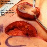 kıl dönmesinde neden büyük ameliyat yapılır