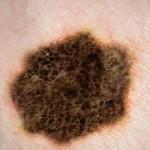 melanom tedavisi