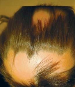 saçkıran sıçrarmı