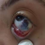 göz içinde hemanjiom nasıl geçer