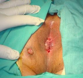 anal fistül görüntüsü