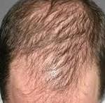gençken saç dökülmesi