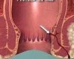 lazerle fistül ameliyatı