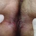 anal dermatit