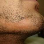 sakalda yanık izi