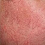yüzde kılcal damar lazer ile tedavisi
