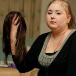agresif saç gökülmesi