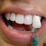 estetik diş uygulamaları adana