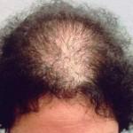kansızlığa bağlı saç dökülmesi