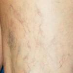 Bacak kılcal damarları nasıl geçer