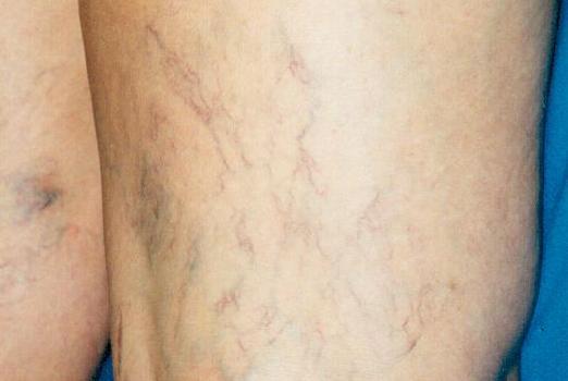 bacaklarda örümcek damarlar ile ilgili görsel sonucu