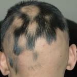 saçkıran için şampuan