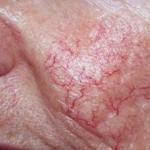 kılcal damar çatlaması