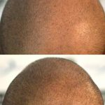 saç mikro pigmentasyonu