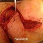 kil-donmesi-ameliyati-nasil-yapilir