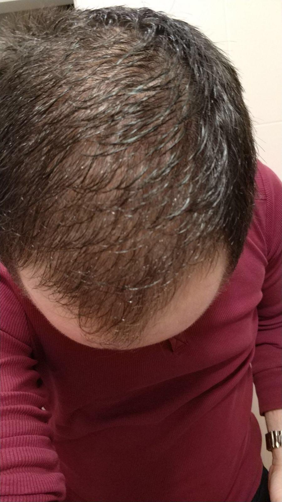 Ampuller saç dökülmesinden - bunlar ve nasıl uygulanır